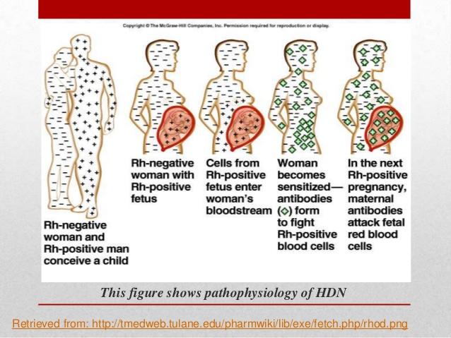 abo hemolytic disease of newborn