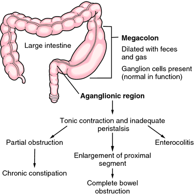 aganglionic