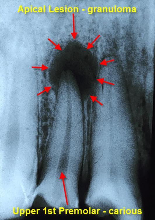 dental granuloma