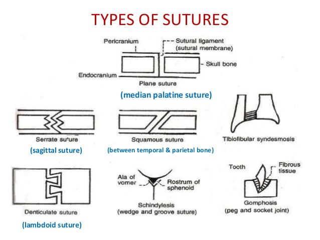 dentate suture