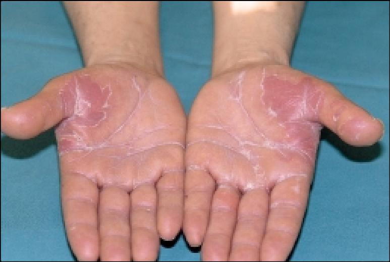 erythrodysesthesia syndrome