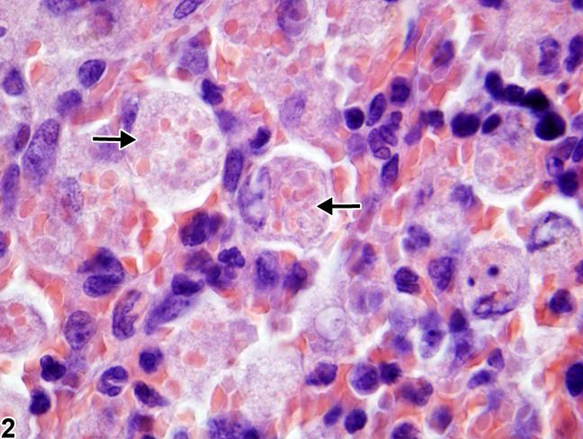 erythrophagocytosis