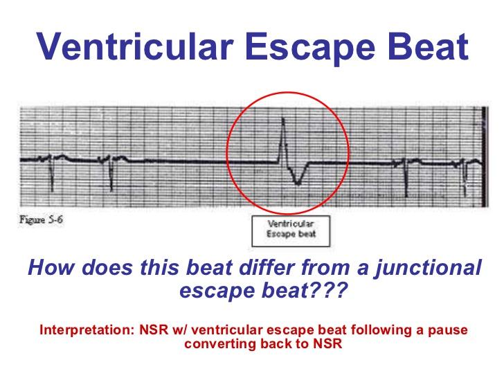escaped ventricular contraction
