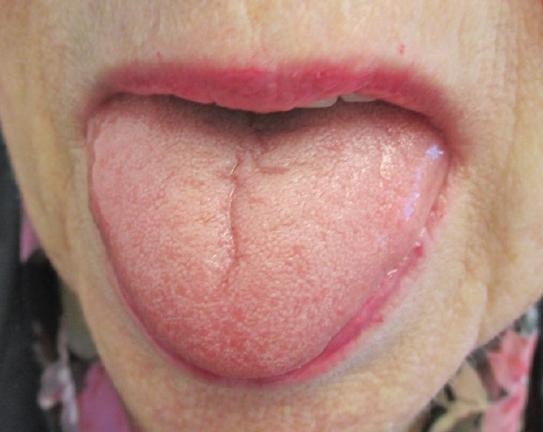 furrowed tongue