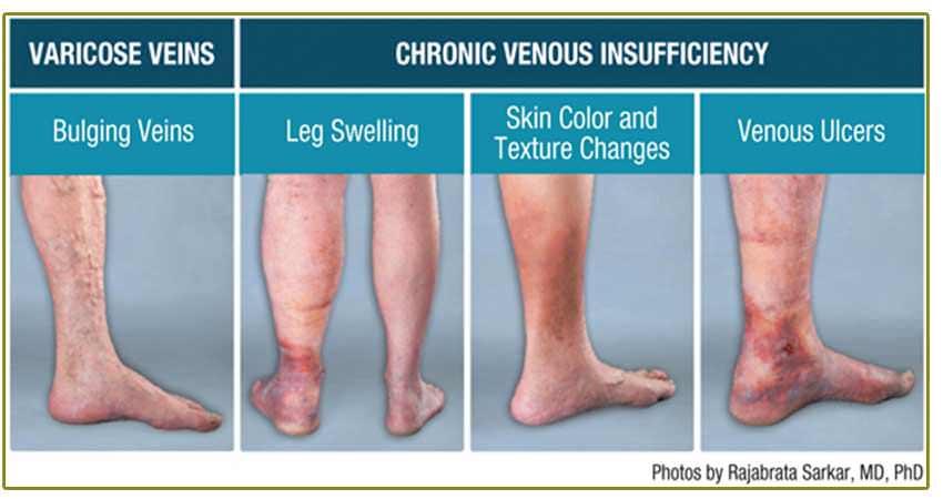 insufficiency disease