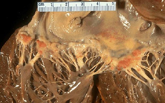 libman-sacks endocarditis