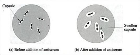 neufeld capsular swelling