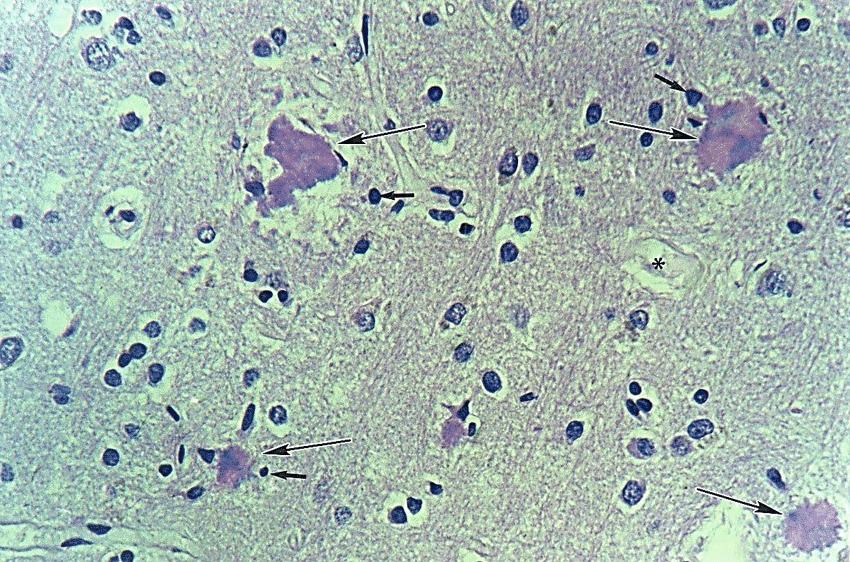 neuritic plaque