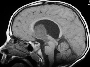 neurocytoma