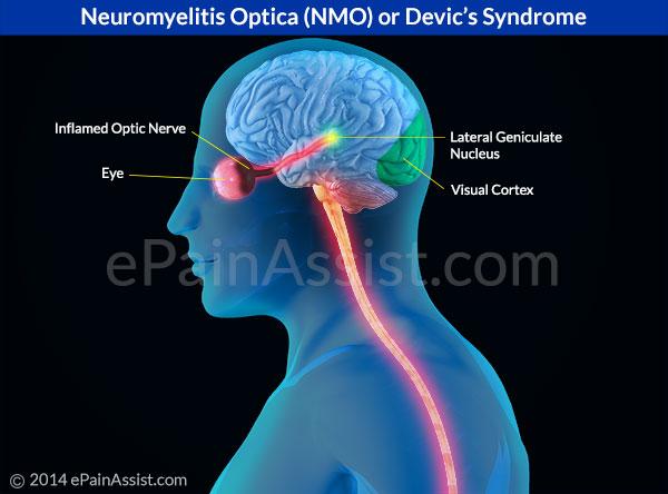 neuromyelitis