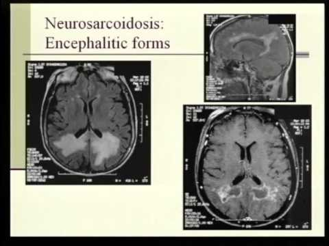 neurosarcoidosis