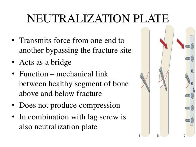 neutralization plate