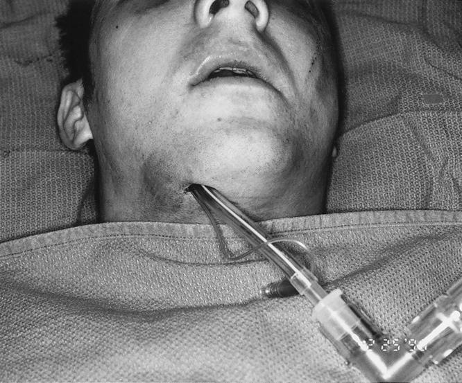 orotracheal tube