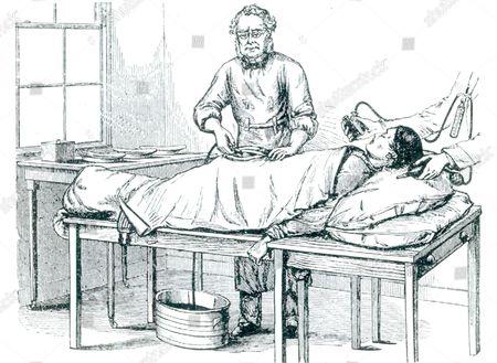 ovariotomy