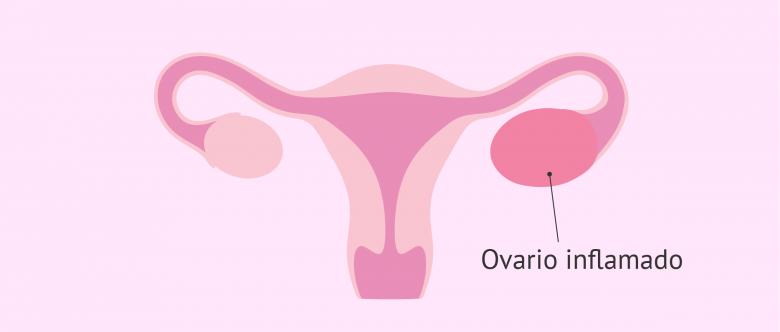 ovaritis