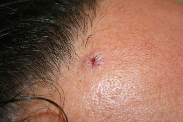 pearl tumor