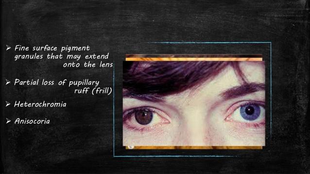 pigmentary