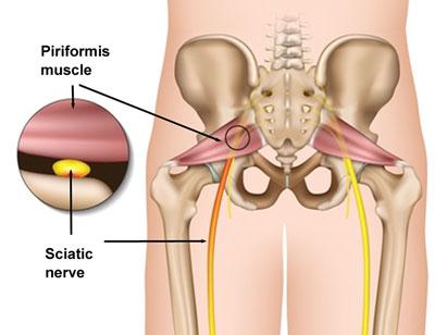 piriform muscle