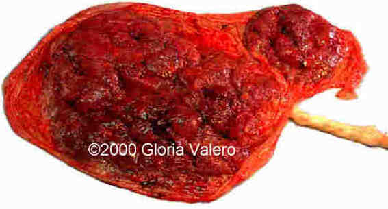 placenta spuria