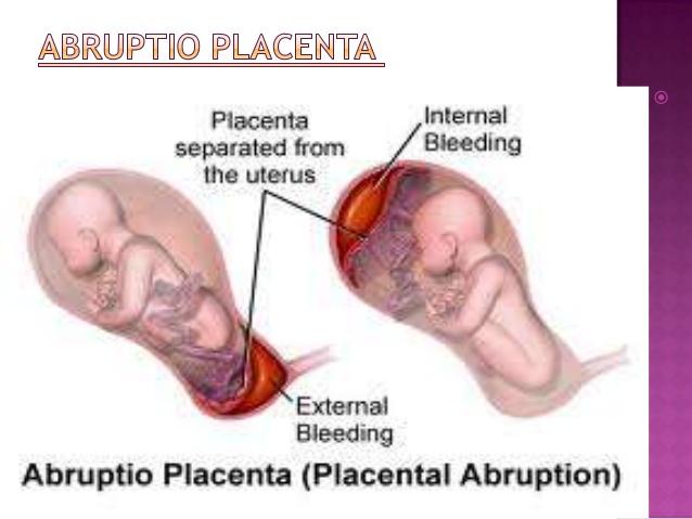 placental presentation