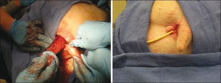 rectotomy