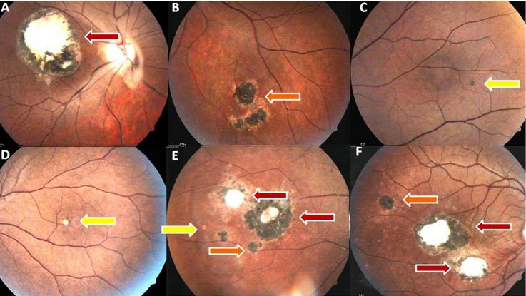 retinochoroid