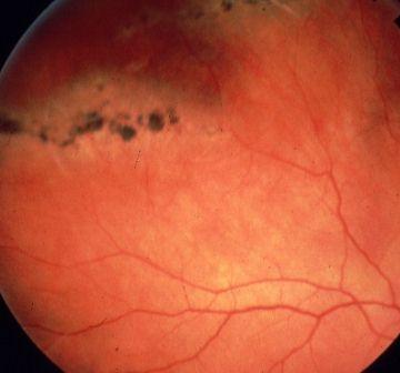 retinodialysis