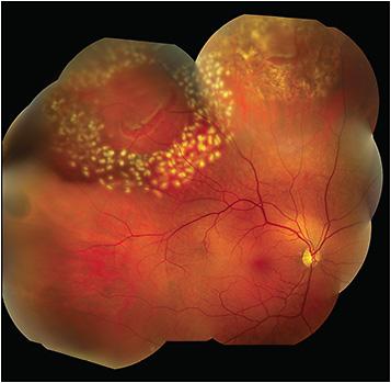 retinopexy