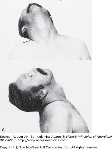 retrocollic spasm