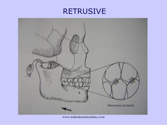 retrusive