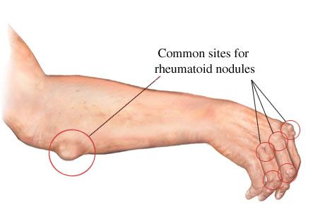 rheumatoid nodule