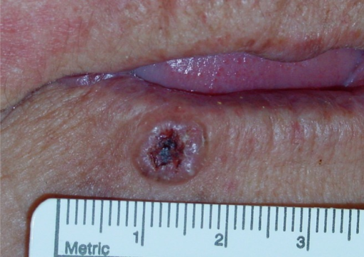 rodent ulcer