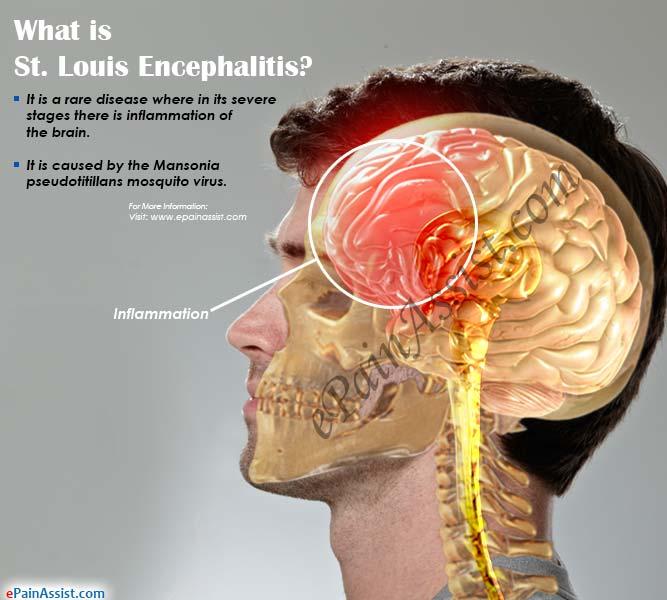 saint louis encephalitis