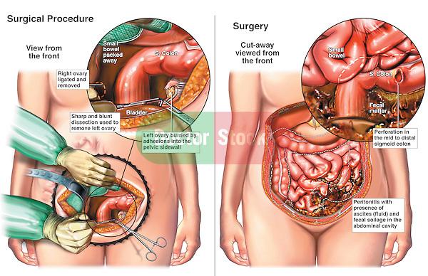 salpingoperitonitis