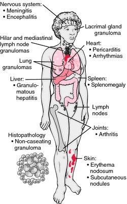 schaumann's syndrome