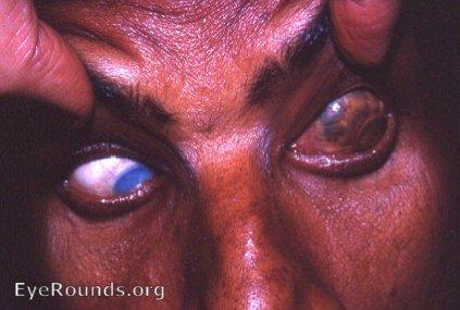 scleral staphyloma