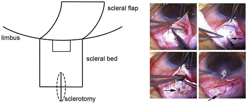 scleriritomy