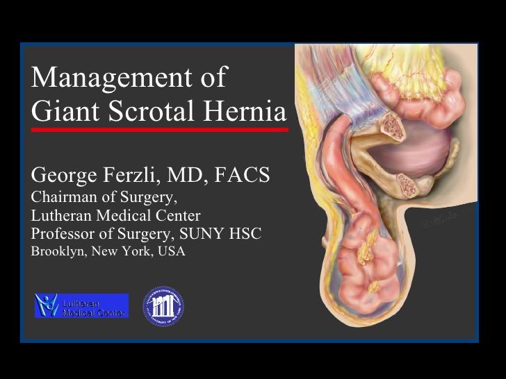 scrotal hernia