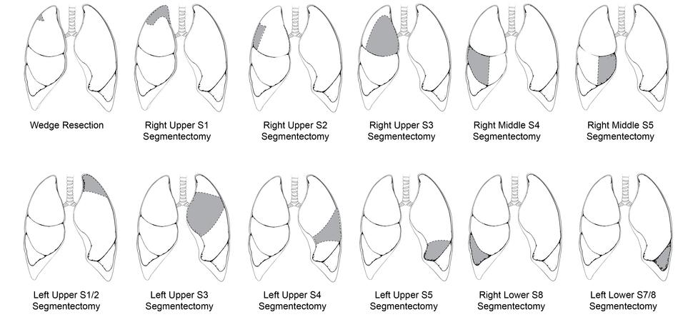segmentectomy