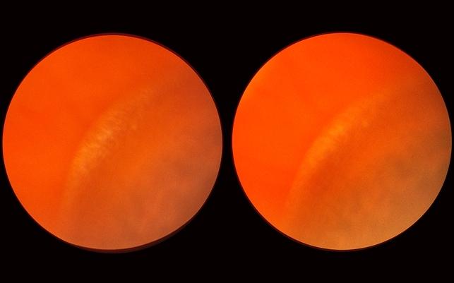 senile retinoschisis