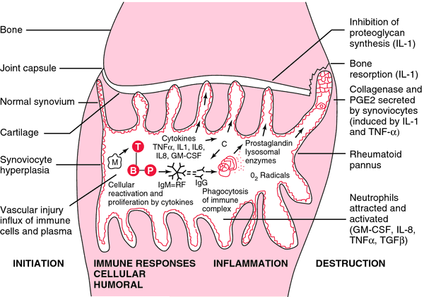 serous synovitis