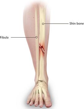 shinbone