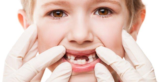 sixth-year molar