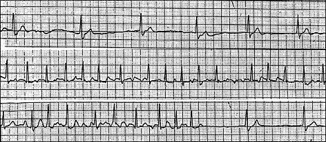 tachycardia-bradycardia syndrome