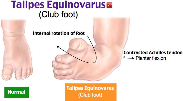 talipes equinovarus
