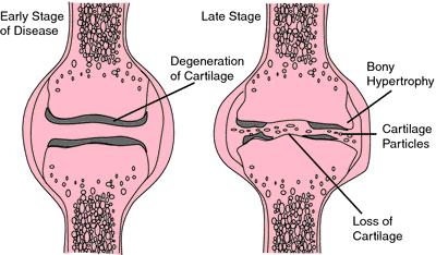 temporary cartilage