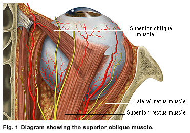 tendon sheath syndrome