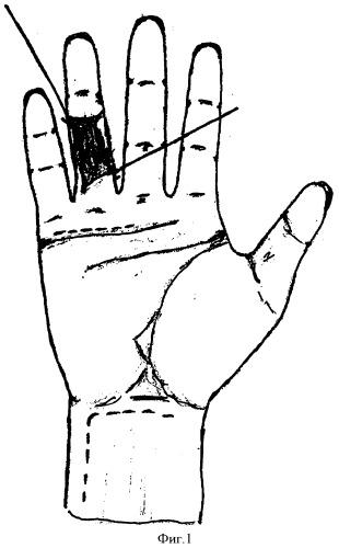 tendoplasty