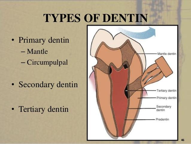 tertiary dentin