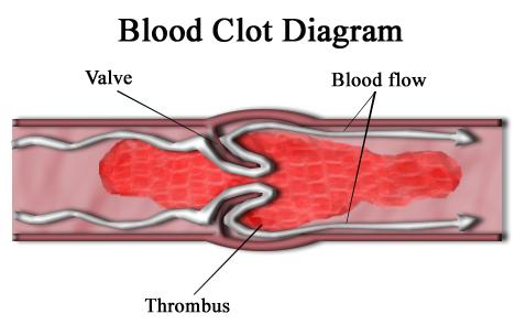 thrombi